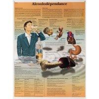 Planche anatomique de formation sur l'alcoolisme